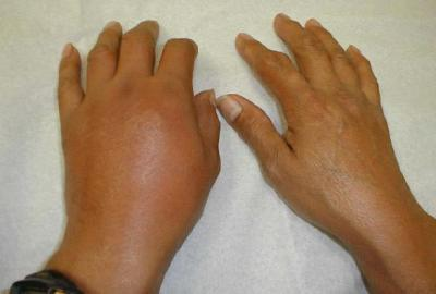 Gout attack in hands