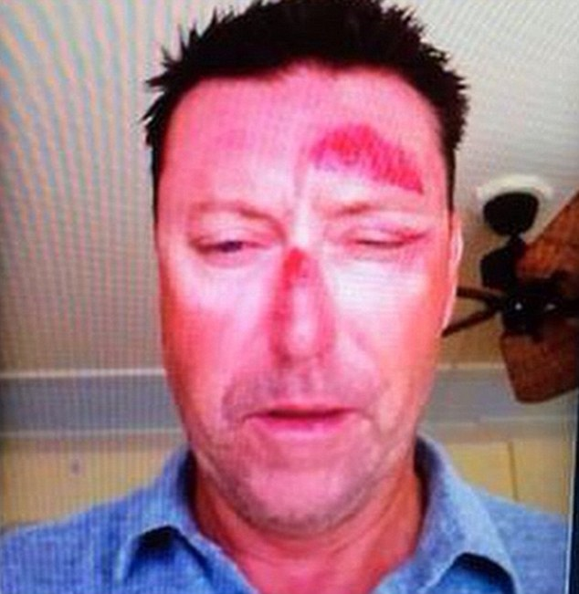 Australian golfer Robert Allenby was allegedly kidnapped from a bar, robbed and beaten up in Hawaii