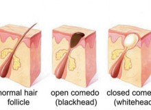 Getting Rid Of Blackheads, Whiteheads And Others
